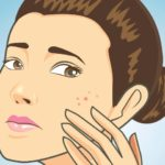 Acnes Pimples Treatment -Flax Seed Benefits- Home Remedies